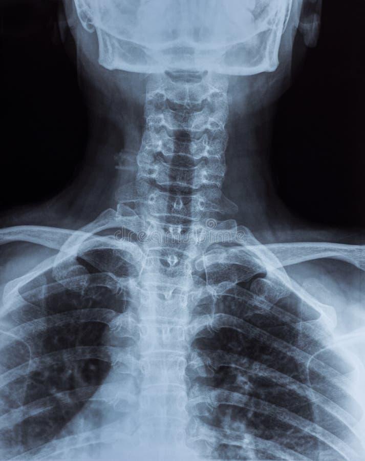 Изображение рентгеновского снимка стоковое фото rf