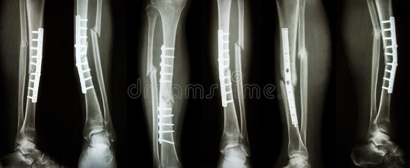 Изображение собрания трещиноватости ноги и хирургической обработки внутренним фиксированием с плитой и винтом Берце пролома и кос стоковая фотография
