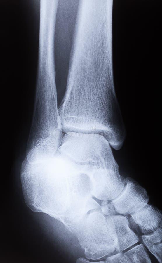 Изображение соединения ноги человека, взгляд со стороны рентгеновского снимка стоковая фотография rf