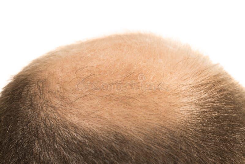 Изолированное выпадение волос плешивости алопесии человека стоковые изображения