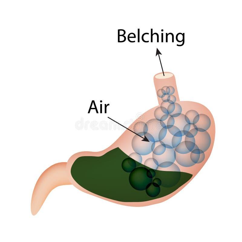изрыгать Воздух в животе Структура esophagus и живота Инфографика также вектор иллюстрации притяжки corel иллюстрация штока