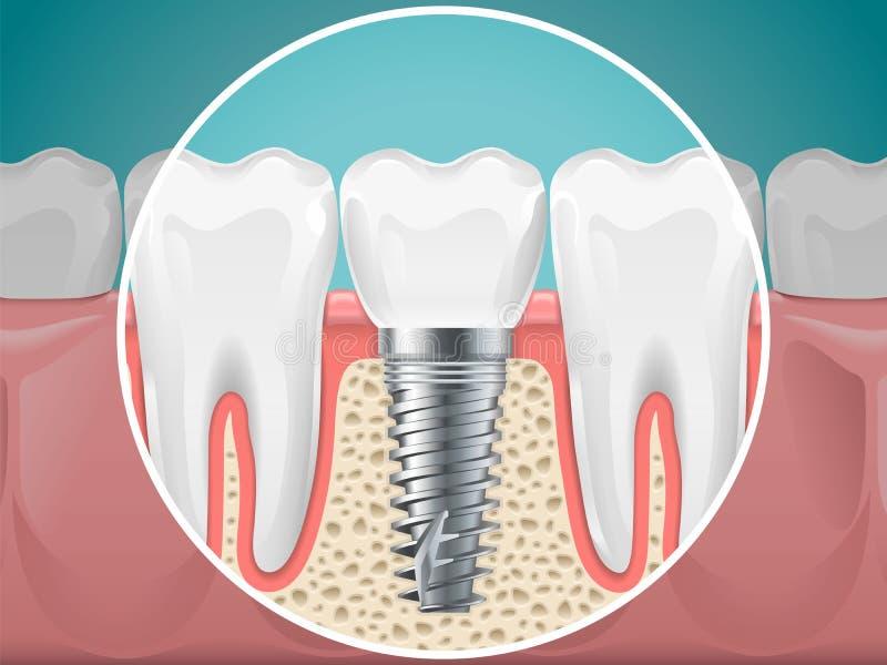 Иллюстрации стоматологии Зубные имплантаты и здоровые зубы иллюстрация вектора