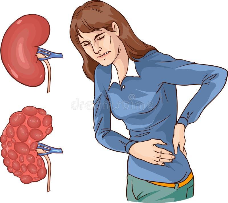 иллюстрация вектора хронической болезни почек иллюстрация вектора