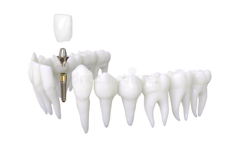 иллюстрация модели 3d зубного имплантата зубов иллюстрация вектора