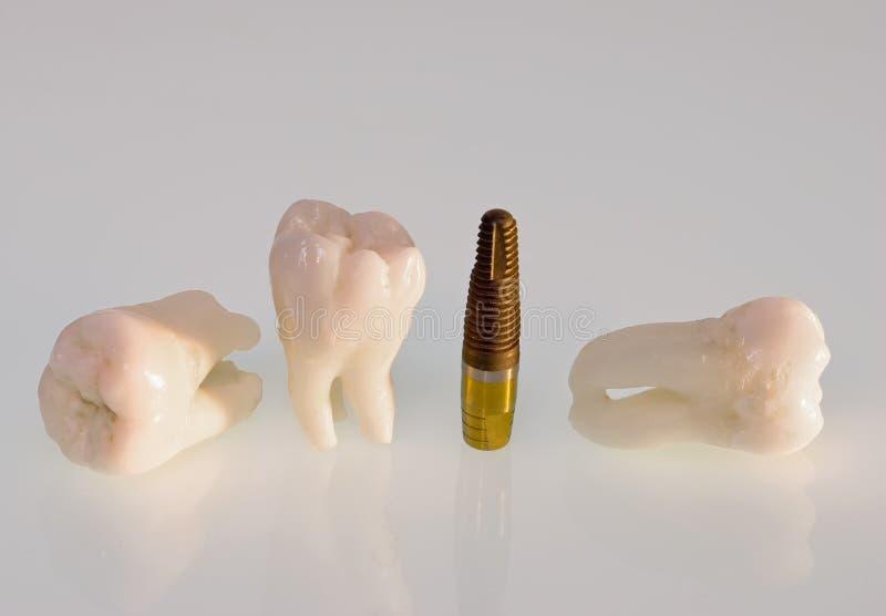 имплантирует зубы стоковые изображения