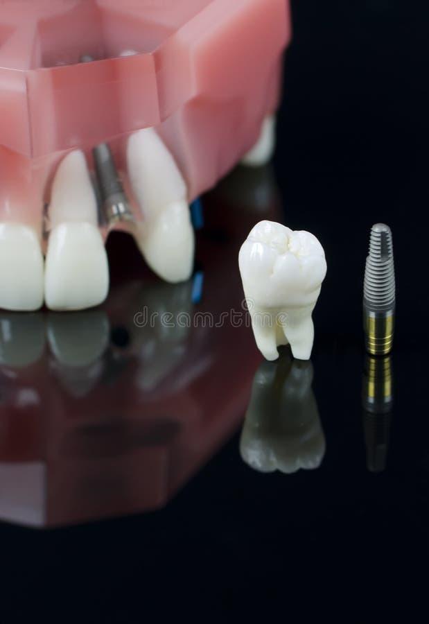 имплантируйте модельную премудрость зуба зубов стоковые фото