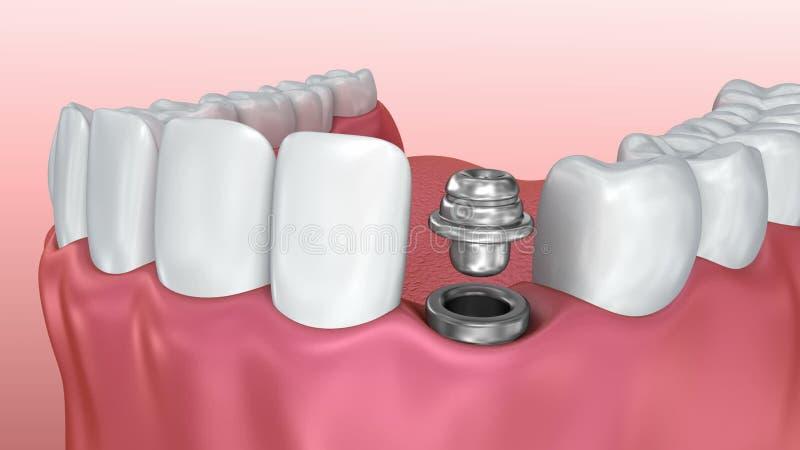 Инсталляционный процесс implant зуба, медицински точный иллюстрация штока