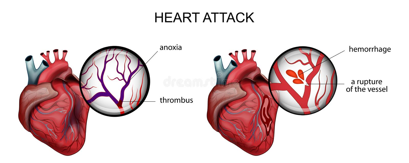 инфаркт миокардиальный затромбирование и кровотечение иллюстрация вектора