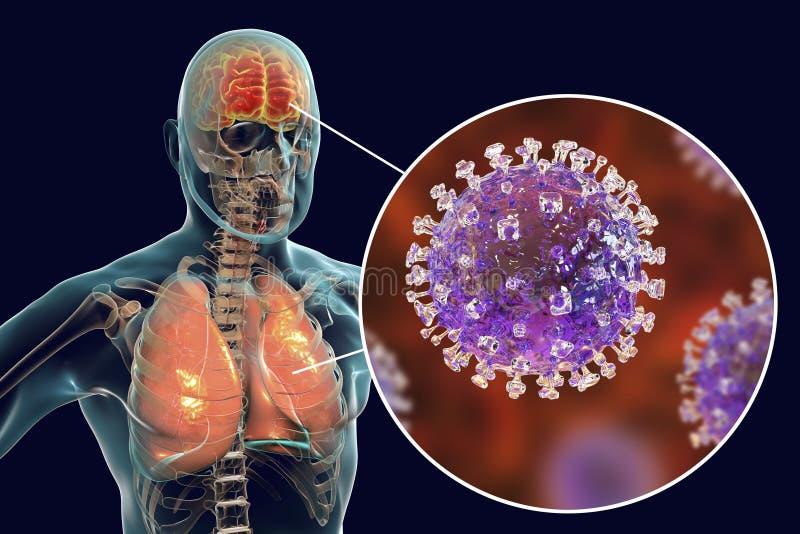 Инфекция вируса Nipah иллюстрация вектора