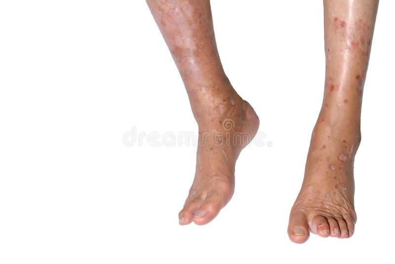 Инфекция в ноге стоковая фотография