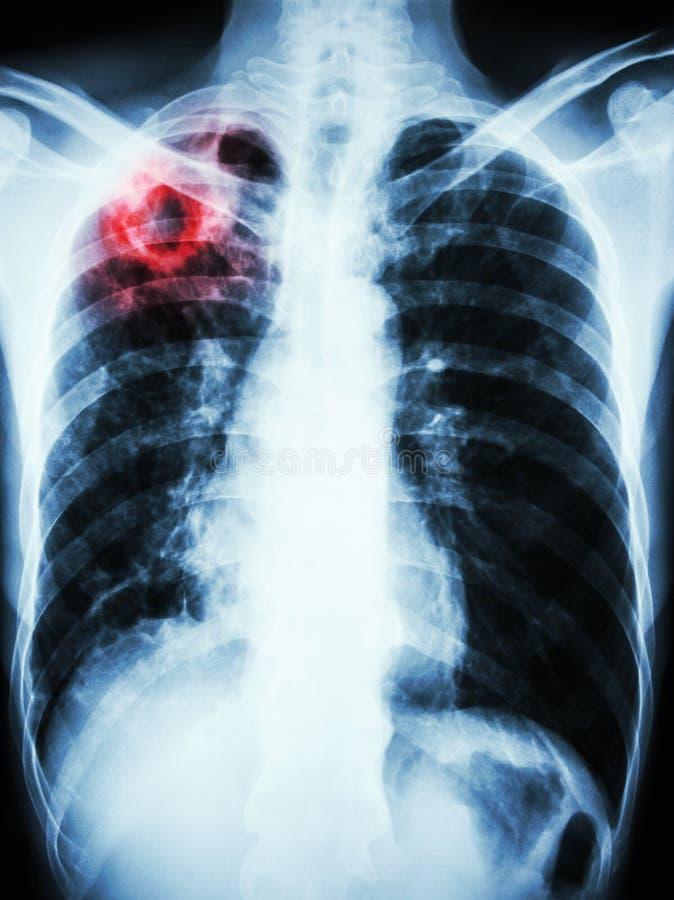 Инфекция туберкулеза микобактерии (легочный туберкулез) стоковые изображения