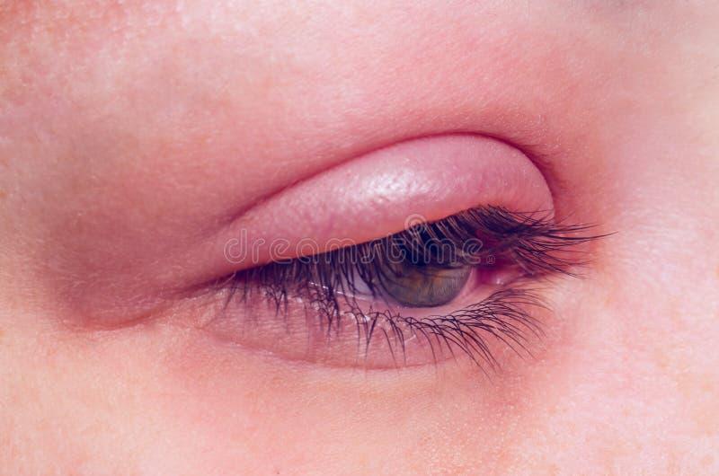 Инфекция ячменя на глазе стоковая фотография