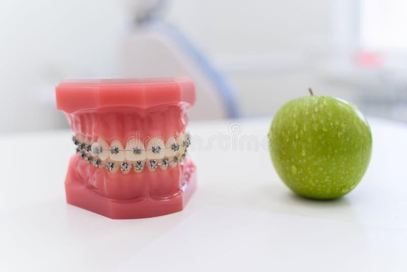 Искусственные челюсти с расчалками лежат с зеленым яблоком на таблице стоковая фотография rf