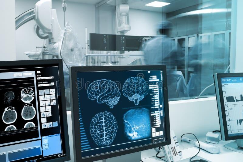 Исследование, визуализирование и практика с человеческим мозгом в рентгеновском снимке стоковая фотография