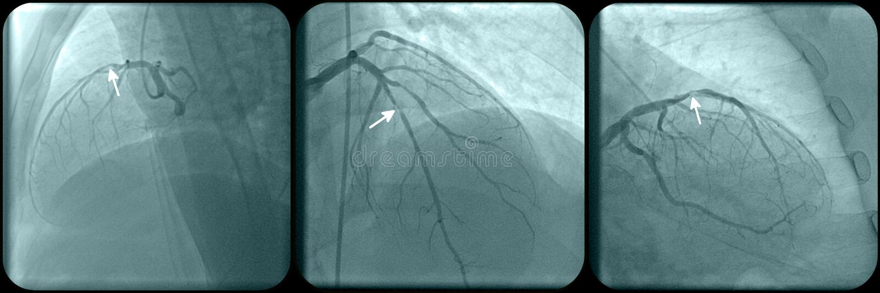 Ишемическая болезнь сердца стоковая фотография rf