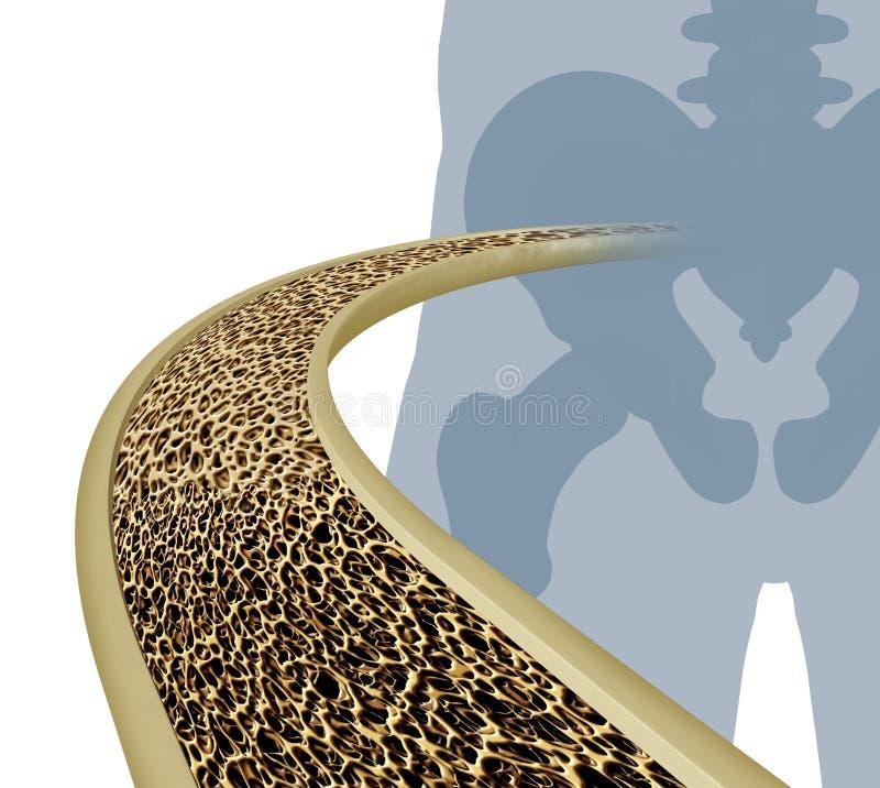 Иллюстрация остеопороза медицинская иллюстрация вектора
