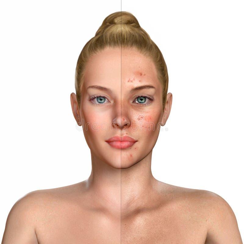 иллюстрация 3d женщины перед и после proce обработки угорь иллюстрация штока