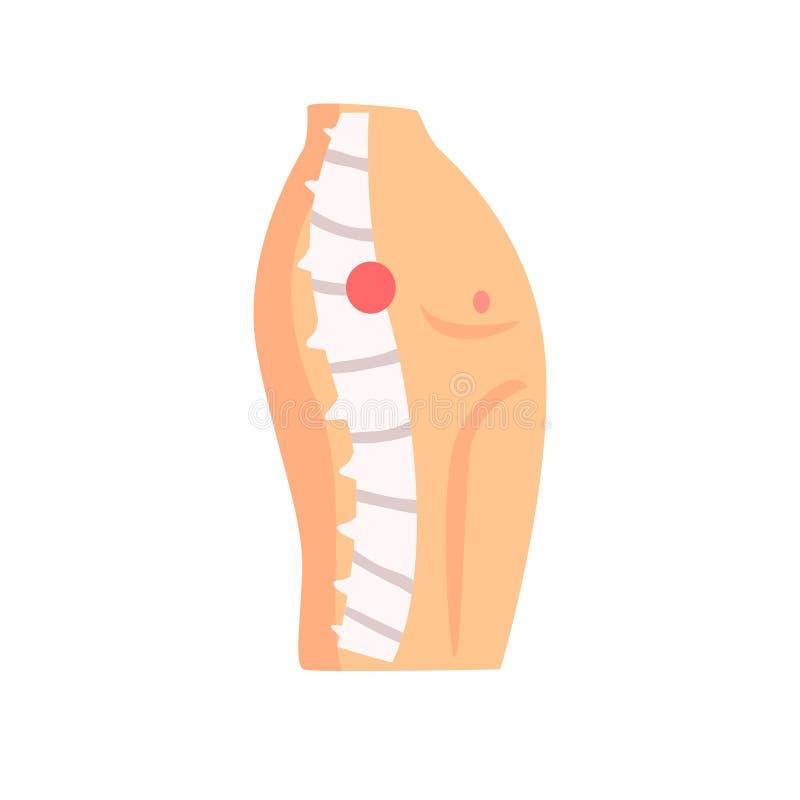 Иллюстрация o вектора шаржа боли ушиба позвоночника бесплатная иллюстрация