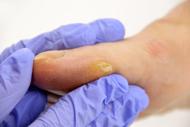 Каллюс на пальце ноги стоковые фотографии rf