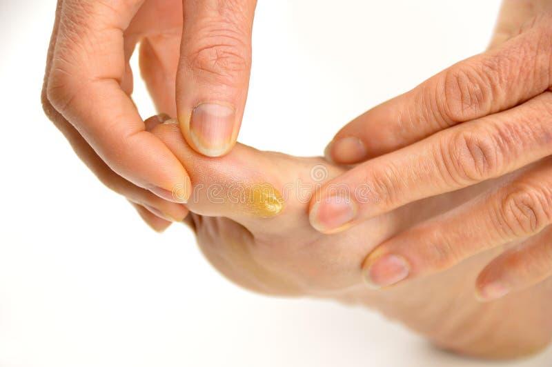 Каллюс на пальце ноги стоковая фотография