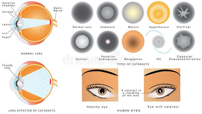катаракта бесплатная иллюстрация