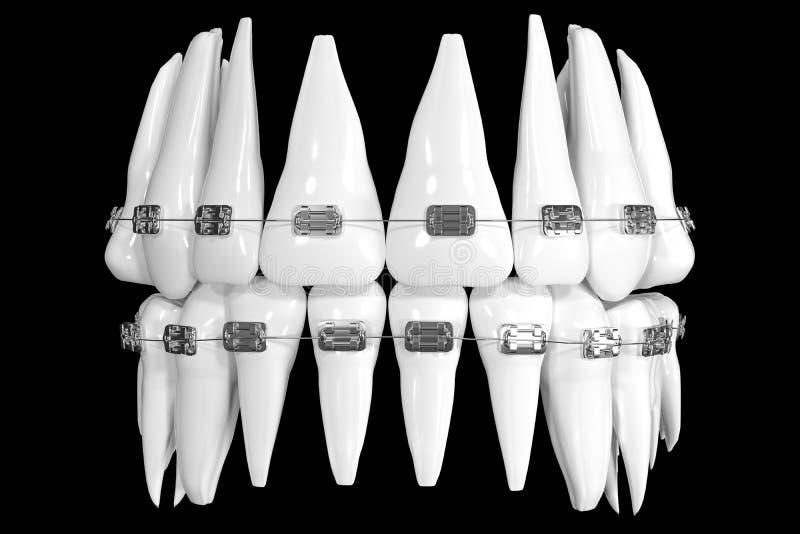Качественная зубоврачебная модель с расчалками, на черной предпосылке Фото-реалистическая иллюстрация белые расчалки зубов Значок бесплатная иллюстрация