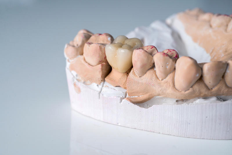 Керамические кроны в зубоврачебной лаборатории на белизне стоковое фото rf