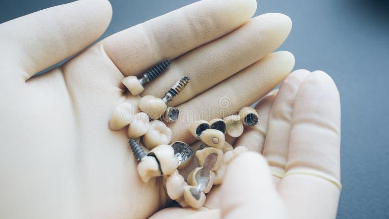 Керамическое реконструкции зубов зубоврачебное имплантирует руки стоковое фото rf