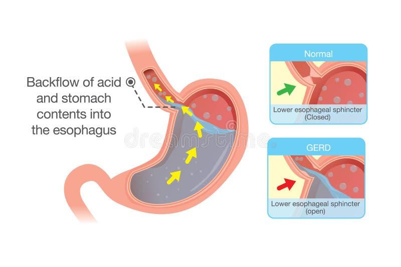 Кислота в резервной копии живота в esophagus иллюстрация штока