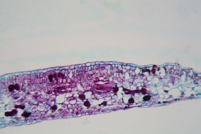 Клетки лист завода с поврежденным эпидермисом и хлоропластов под микроскопом стоковое фото