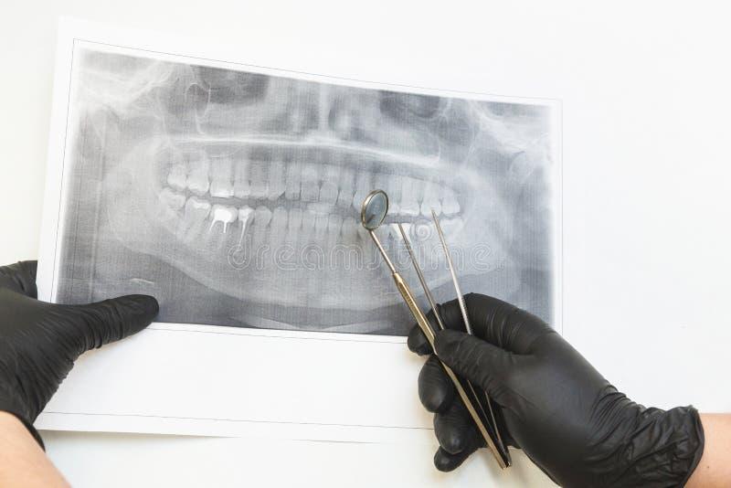 клиника зубоврачебная Прием, рассмотрение пациента Забота зубов Дантист смотрит изображение рентгеновского снимка челюсти пациент стоковое фото