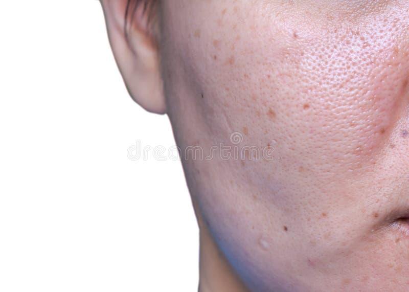Кожа женщины проблемная, шрамы угорь, маслообразные кожа и пора, темные пятна и угорь и whitehead на стороне стоковые изображения rf