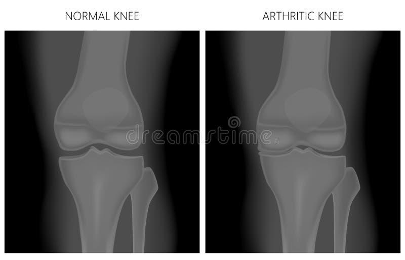Колено мениска _Normal и подагрическое колено бесплатная иллюстрация