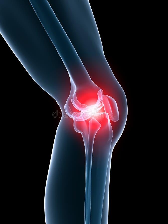колено тягостное