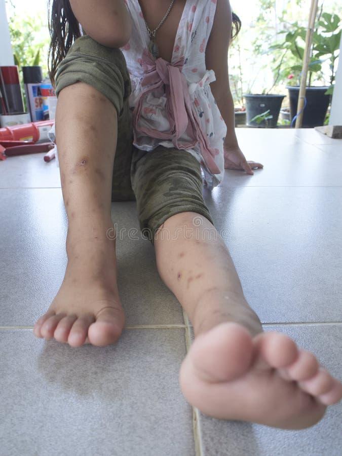 Комариные укусы ноги стоковые фотографии rf