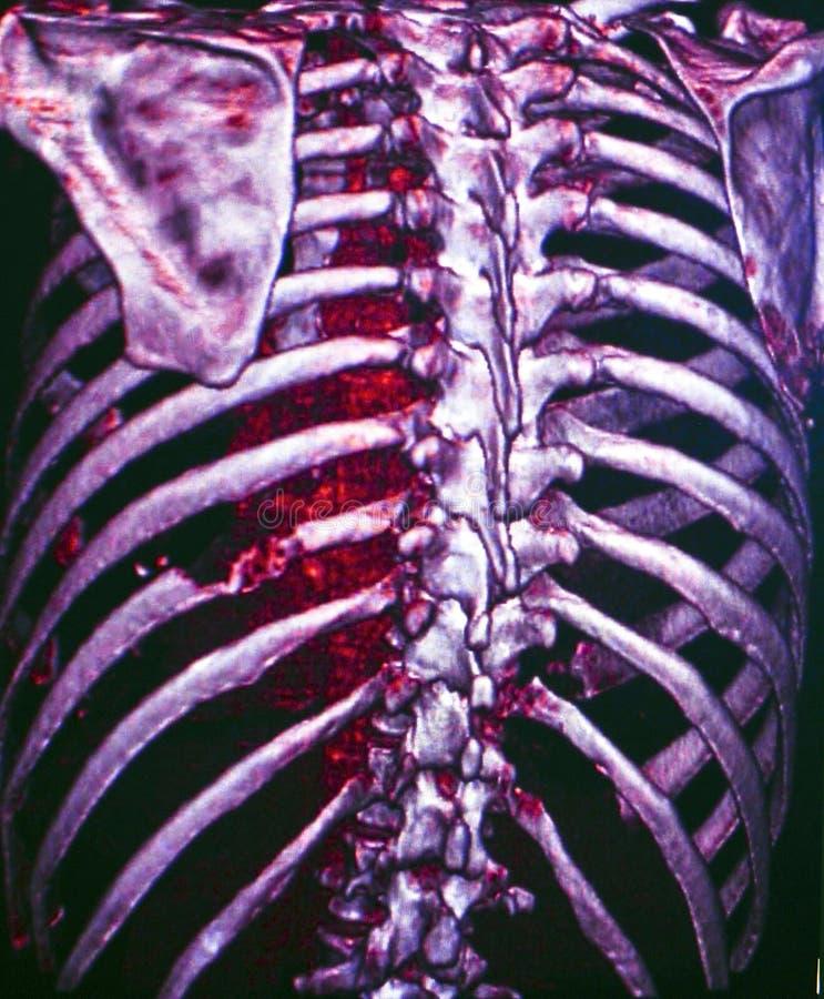 Комод, CT стоковое изображение rf