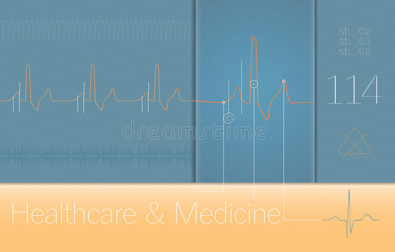 Комплексы ECG медицинские на экране монитора стоковое изображение rf