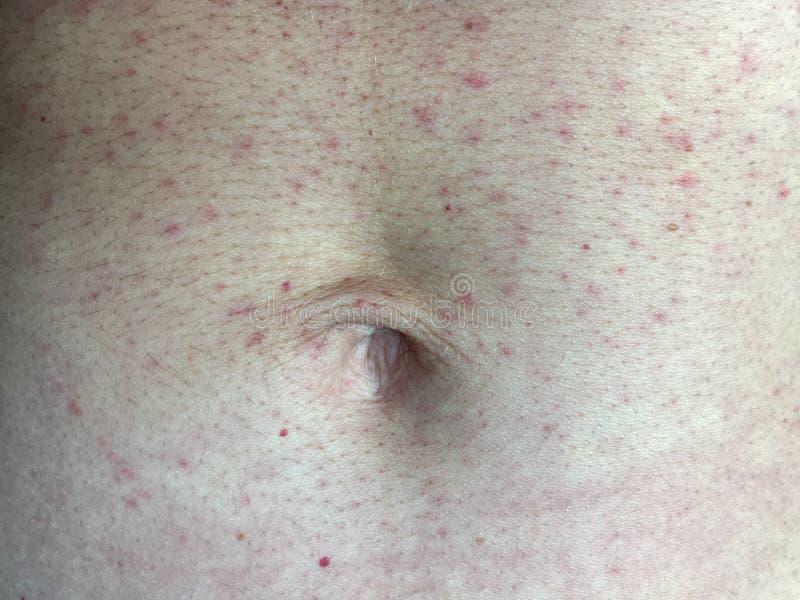 Конец-вверх сыпи кожи красной на животе женщины стоковые изображения rf