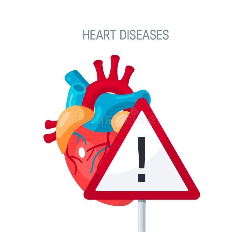 Концепция вектора сердечных болезней в плоском стиле иллюстрация вектора