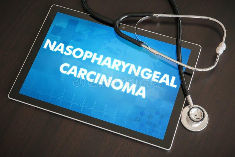 Концепция носоглоточного диагноза карциномы (типа рака) медицинская стоковые изображения rf