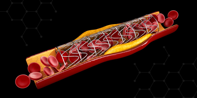 Концепция implant Stent как обработка сердечной болезни иллюстрация иллюстрация вектора