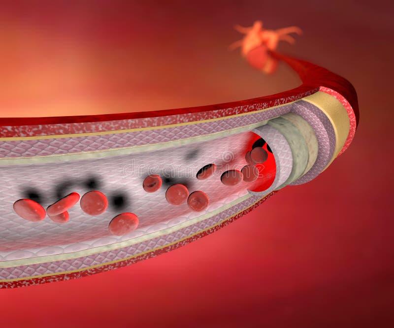 Коронарная артерия бесплатная иллюстрация