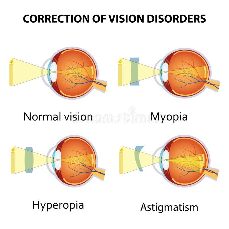 Коррекция разладов зрения глаза объективом иллюстрация вектора
