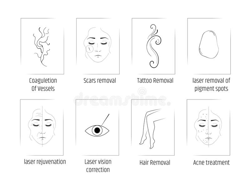 Косметология лазера Комплект процедур по салона Удаление волос Lazenoe, пятна пигмента, шрамы, татуировки и сосуды обработка иллюстрация штока