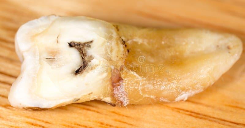 Костоеда в зубе Макрос стоковое фото rf