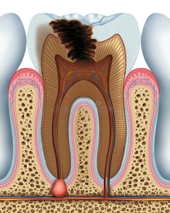 Костоеда зуба иллюстрация штока