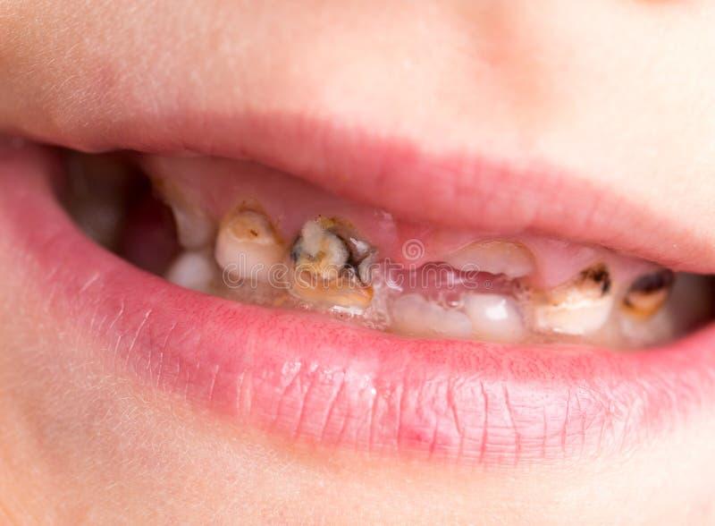 Костоеда на зубах стоковые фото