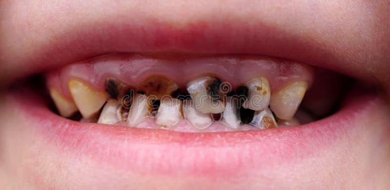 Костоеда на зубах ребенка стоковая фотография