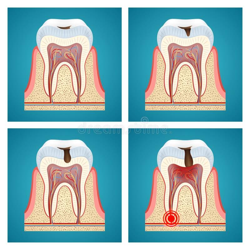 Костоеда прогресса этапов зубоврачебная бесплатная иллюстрация