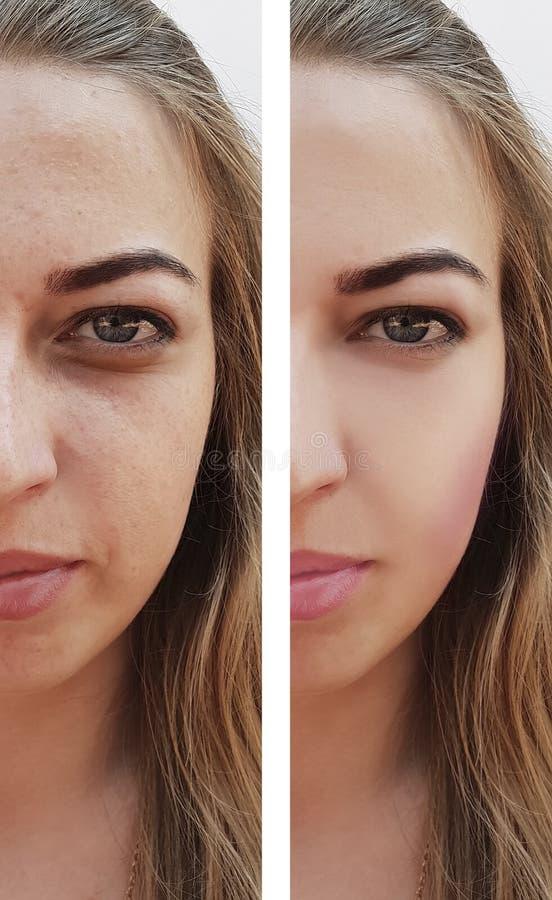 Красивая девушка сморщивает на стороне перед и после процедурами по регенерации пигментацией удаления, цыпках стоковые изображения